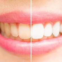 Closeup of teeth split before and after whitening