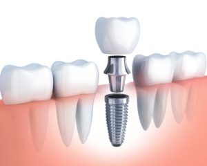 diagram of dental implant, abutment, and crown replacing bottom tooth