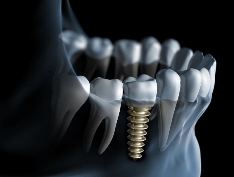 Dental implant in West Palm Beach